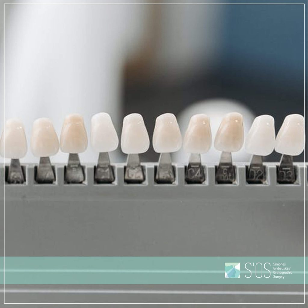 S'OS kllinika - odontologijos klinika Vilniuje