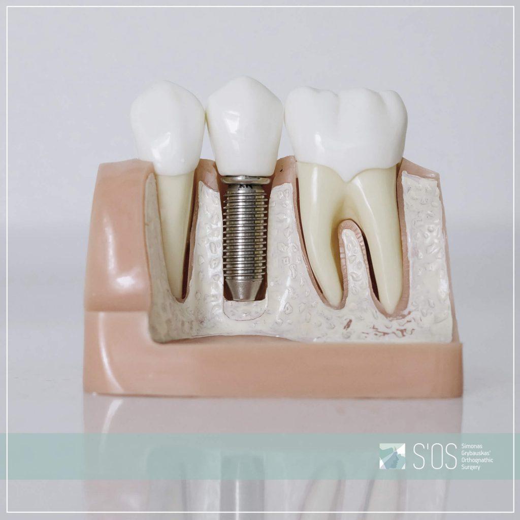 Danties implantas |S'OS klinika